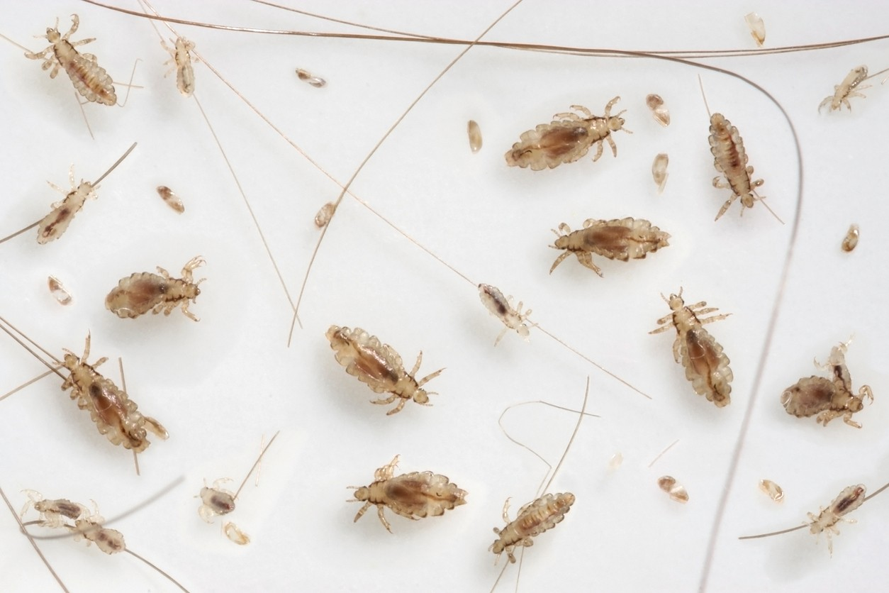 Lice Control And Treatments For The Home Clothing And Hair