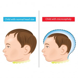 CHILD WITH MICROCEPHALY
